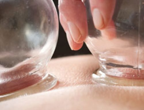 The Efficacy of Wet-Cupping in the Treatment of Tension and Migraine Headache