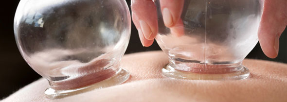 The-Efficacy-of-Wet-Cupping